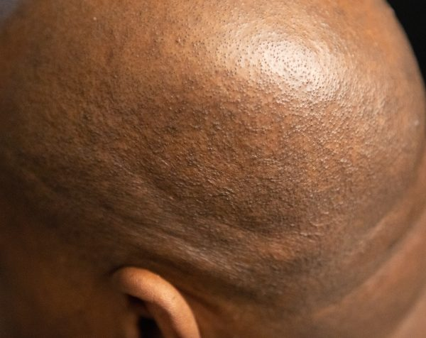 Pitbull Gold Shaver 9